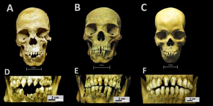 Credit: Collection of San José de los Naturales, Osteology Laboratory, (ENAH), Mexico City, Mexico. Photo: R. Barquera & N. Bernal.