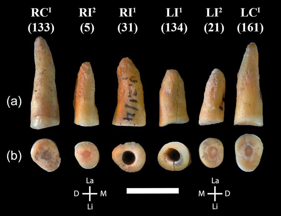 Зубы из Рипаро Фредиан. 3-й и 4-й слева - резцы с высверленным кариесом. Иллюстрация из обсуждаемой статьи.