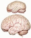 мозг-2