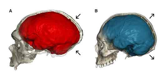 Форма мозга неандертальца из пещеры Ла-Шапель (слева) и современного человека (справа)